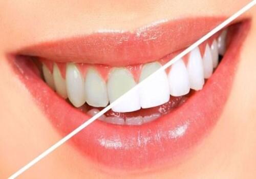 补牙 医疗保健服务美白牙齿厂家直销 四川成都拔牙价格