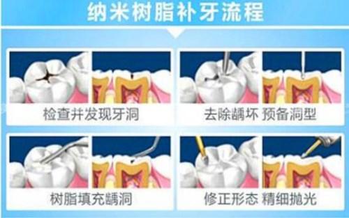 成都哪里补牙好又便宜 成都拔牙价格 天府新区成都片区华阳微笑口腔诊所